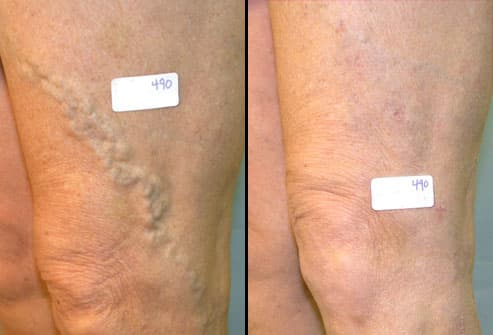 Before and after varicose vein surgery