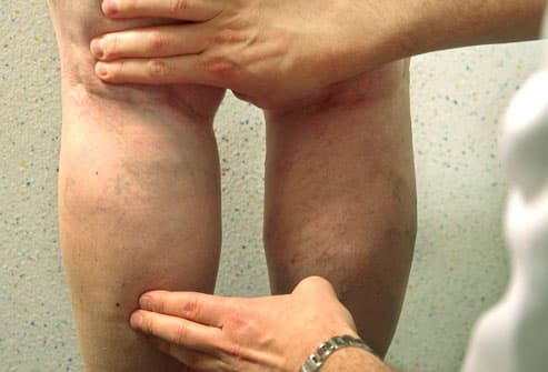 Doctor examining veins on woman's legs