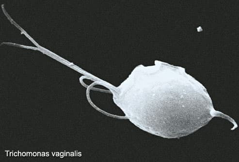 Trichomonas vaginalis, Viewed Under SEM