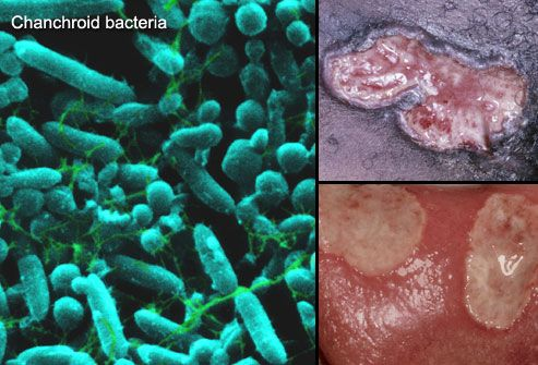 Collage Of Chancroid Infections