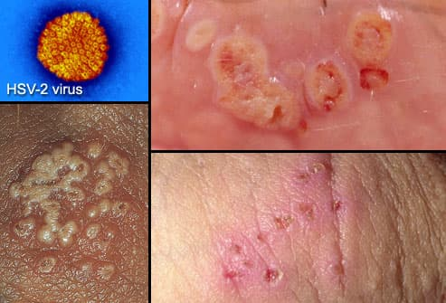 Photos of herpes around anus