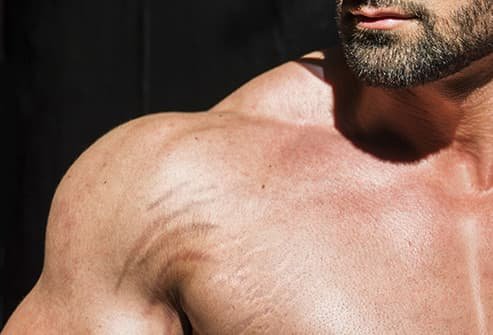 bodybuilder shoulder close up