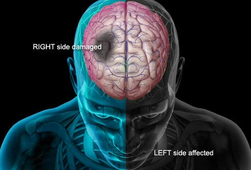Stroke Attacking Brain and Body