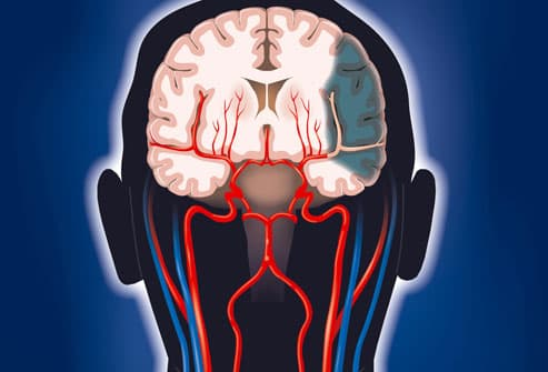Illustration of Brain Damage from Stroke