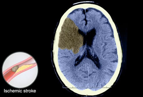Ischemic Stroke Seen on CT Scan of Brain