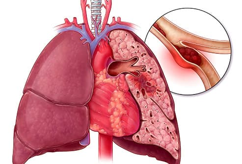 pulmonary embolism illustration