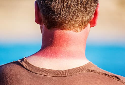 sunburned neck
