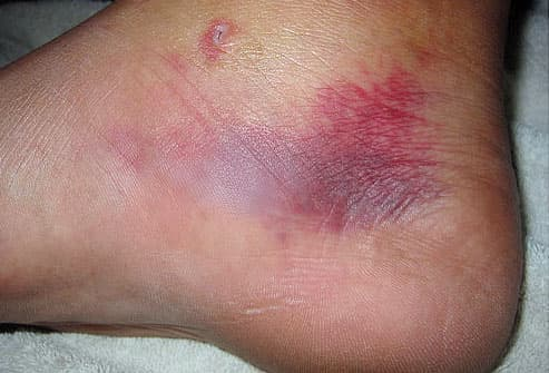 Puncture wound and bruising from stingray barb