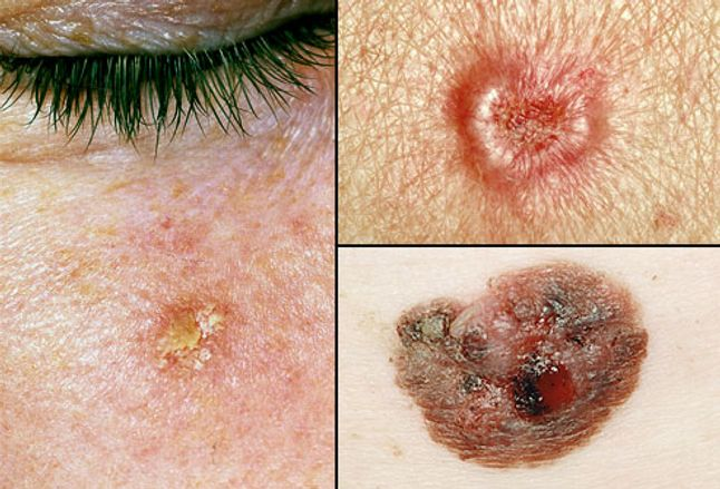 Collage of precancerous skin growths