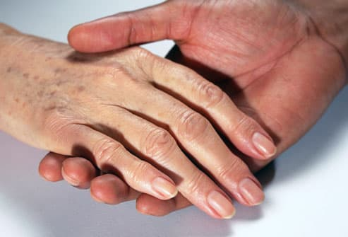 Older woman's hand with age spots