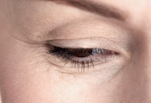 Lines and wrinkles around woman's eye