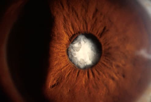 Close-up of a mature cataract