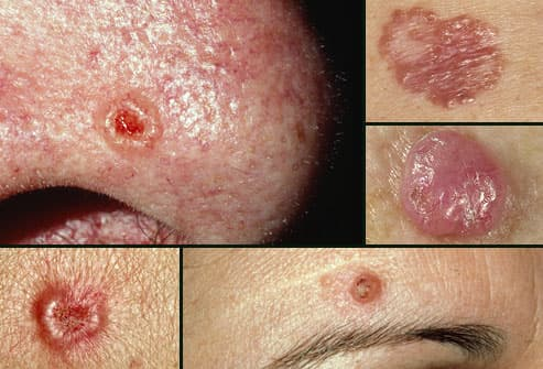 Various presentations of basal cell carcinoma
