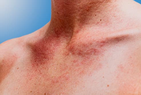 uticaria or sun allergy