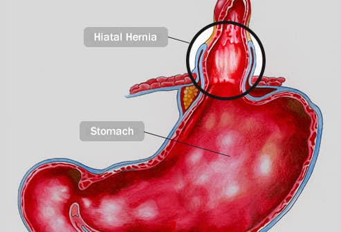 hiatal hernia illustration