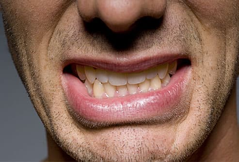 Close Up of Man's Mouth With Clenched Teethpain