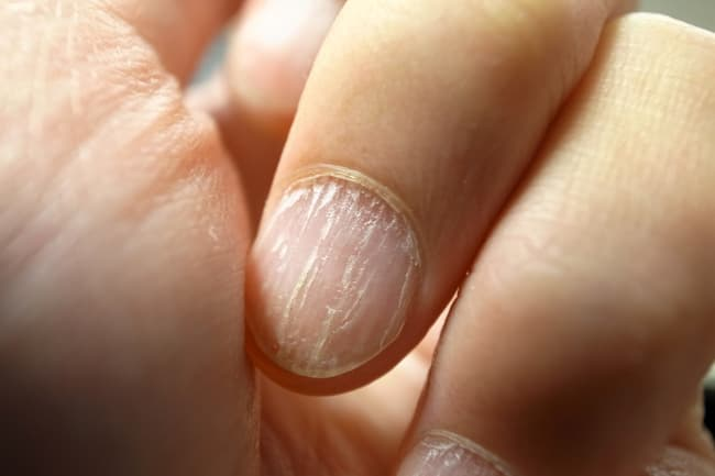 brittle fingernails