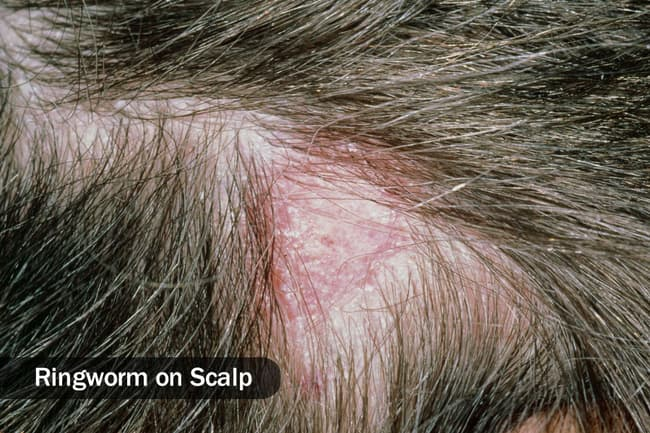 ringworm on scalp