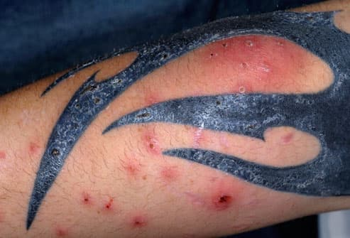 MRSA Infected Arm Tattoo