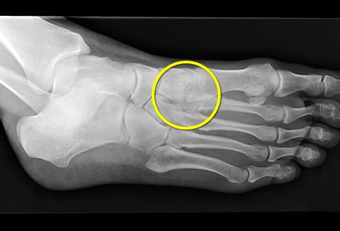 stress fracture in foot x-ray