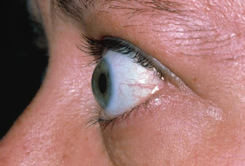 Bulging Eyes From Graves Disease