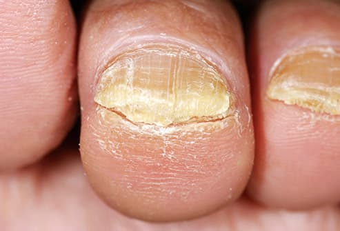 Toenail Fungus: Pictures of What It Looks Like & Treatment Tips