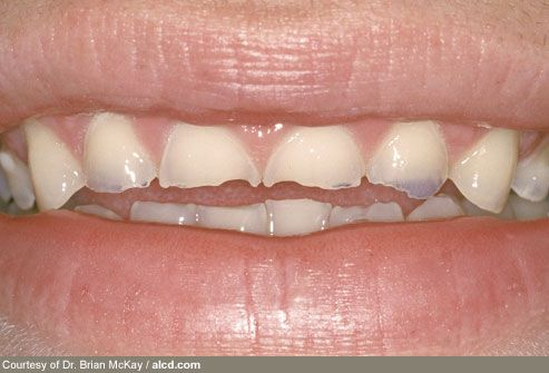 Teeth Damaged by Bulimia