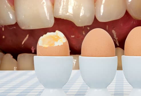 Tooth and Egg Composite Photograph