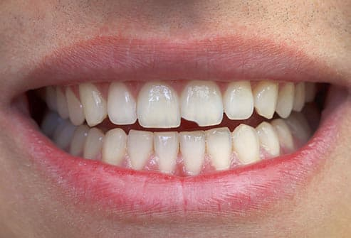 causes of chipped tooth enamel