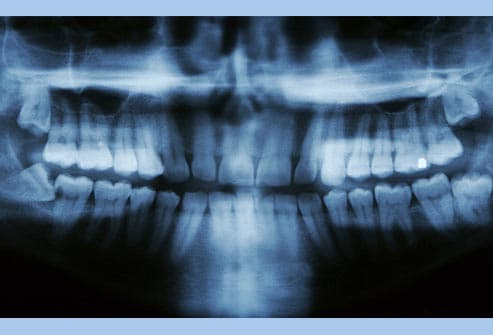x-ray showing impacted wisdom teeth