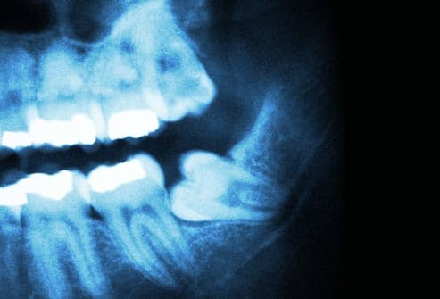 photo of impacted wisdom teeth