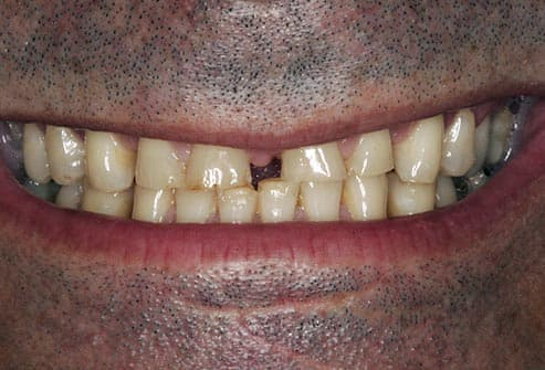bite worn down by bruxism