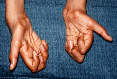 hands with lou gehrig's disease
