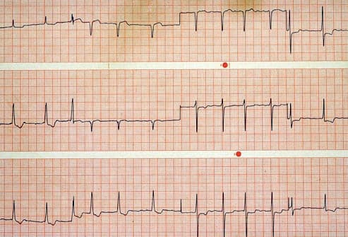 ekg chart showing irregular heart beat