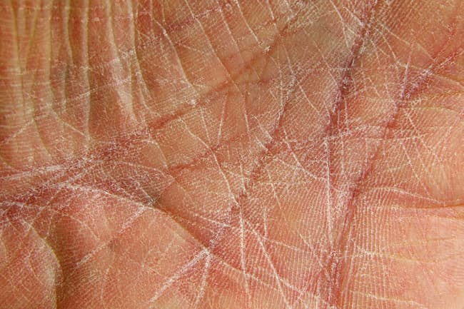 photo of dry cracked skin