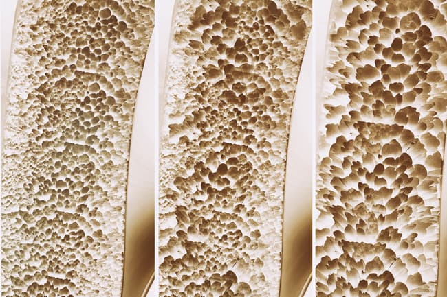 photo of bone density