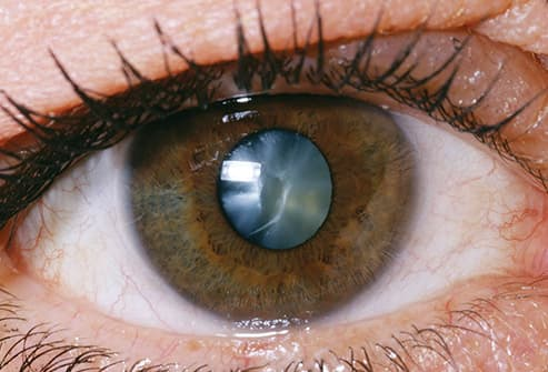 eye cataract close up