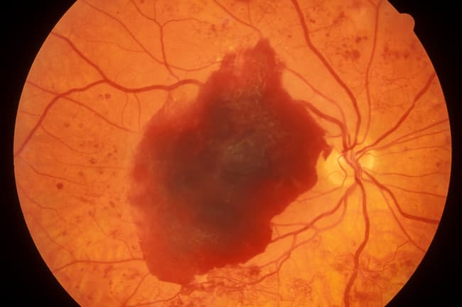 photo of diabetic retinopathy