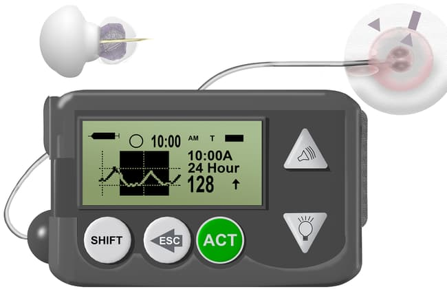 photo of glucose monitor