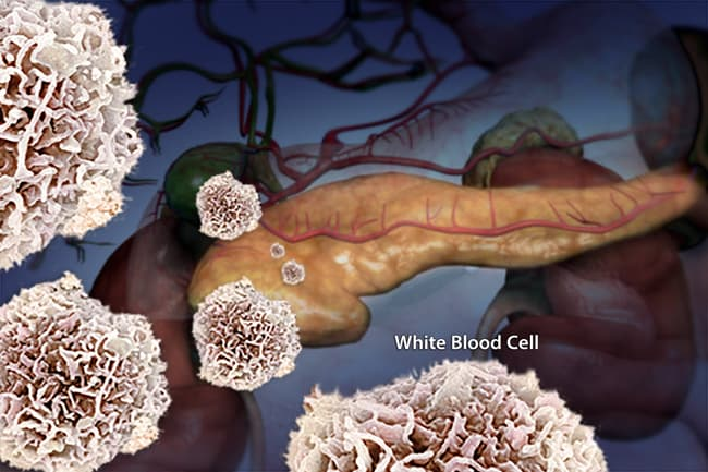 photo of immune system attack