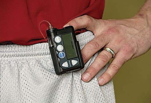 Man wearing insulin pump