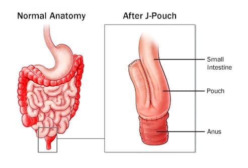 ileal pouch anal anastomosis