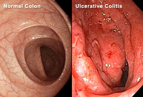 Normal Colon and Ulcerative Colon