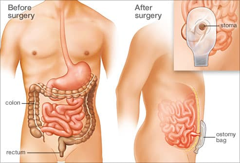 Ulcerative Colitis Surgery What To Expect
