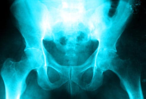 xray of osteoarthritic hip