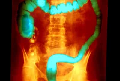 color xray of ulcerative colitis