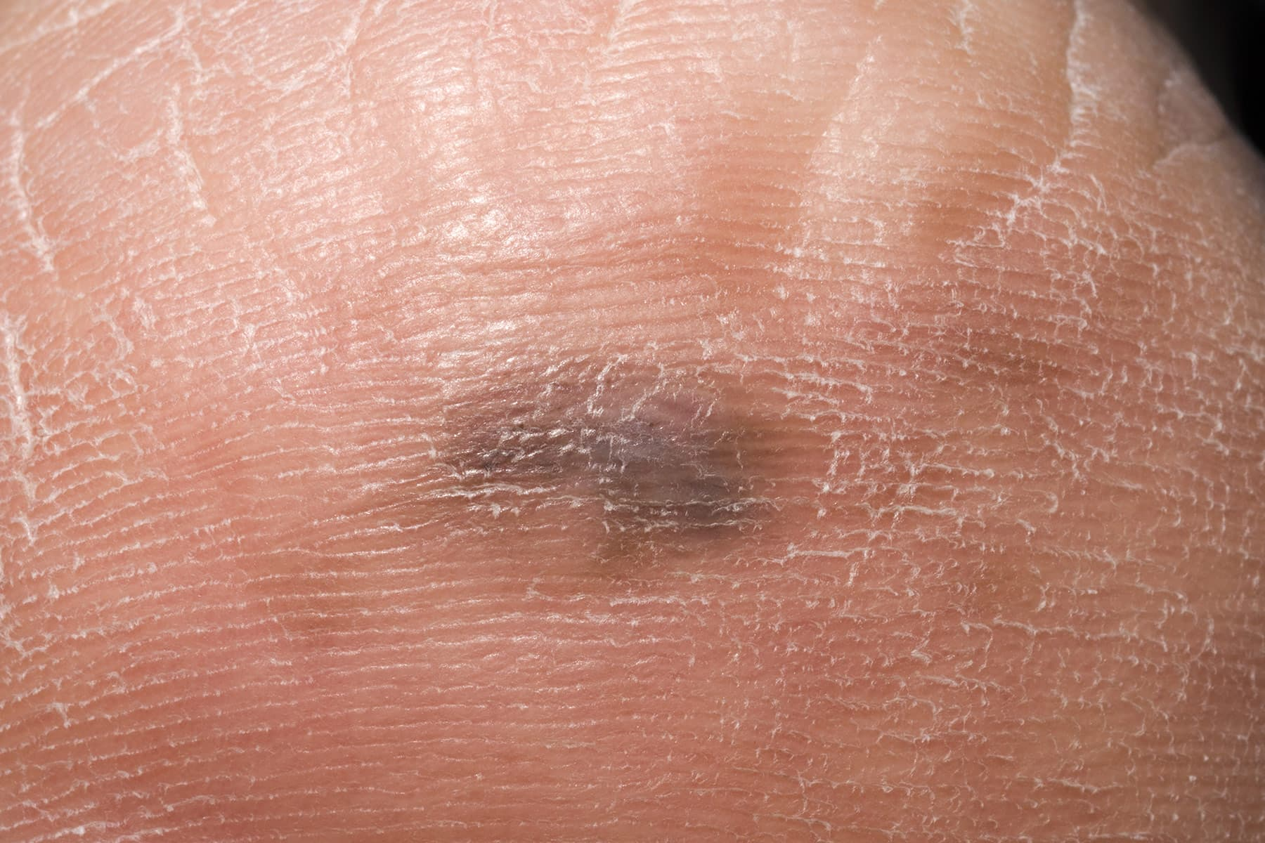 Symptoms of basal cell carcinoma