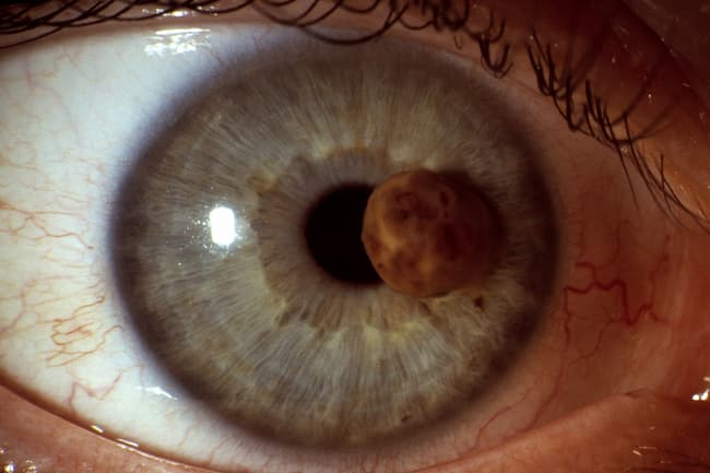 photo of cancer on iris