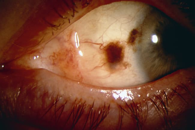 photo of cancer on white of eye