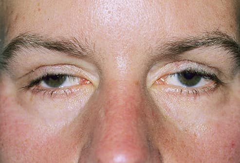 Pictures of Unusual Eye Conditions